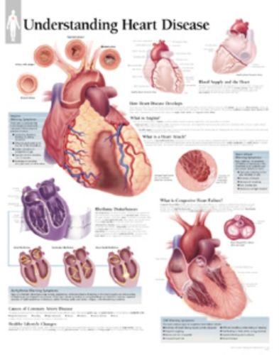 9781930633469 Understanding Heart Disease Laminated Poster