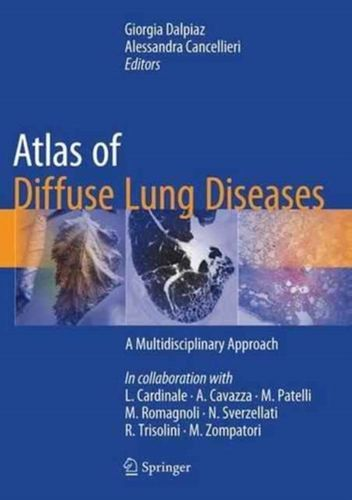 9783319427508 Atlas of Diffuse Lung Diseases
