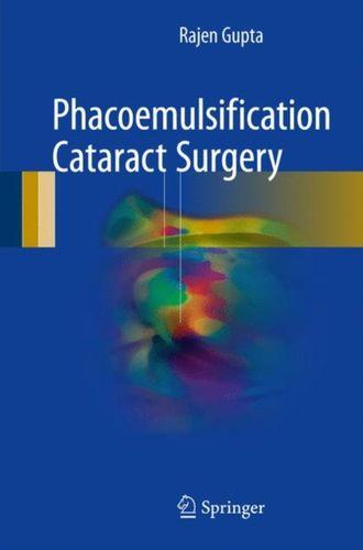 9783319599236 Phacoemulsification Cataract Surgery